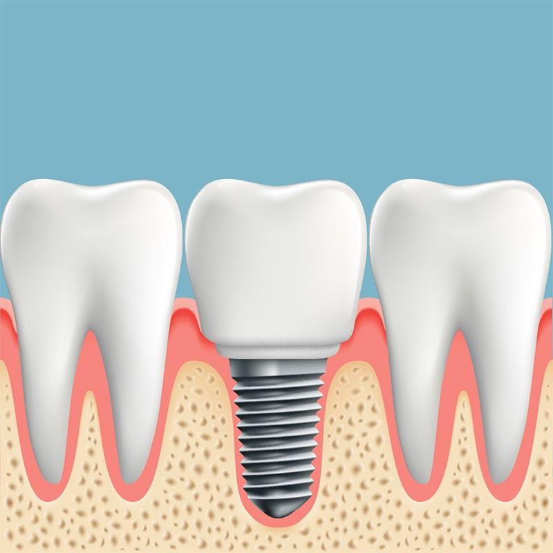 Зъбен имплант 2019 – Научи всичко за зъбните импланти сега!