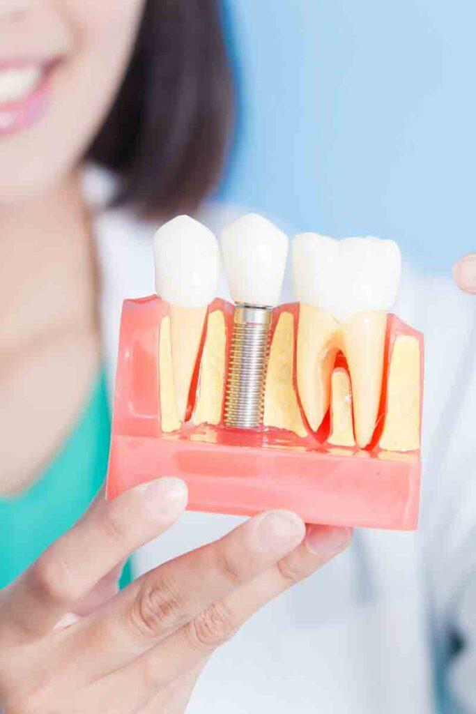 видове зъбни импланти